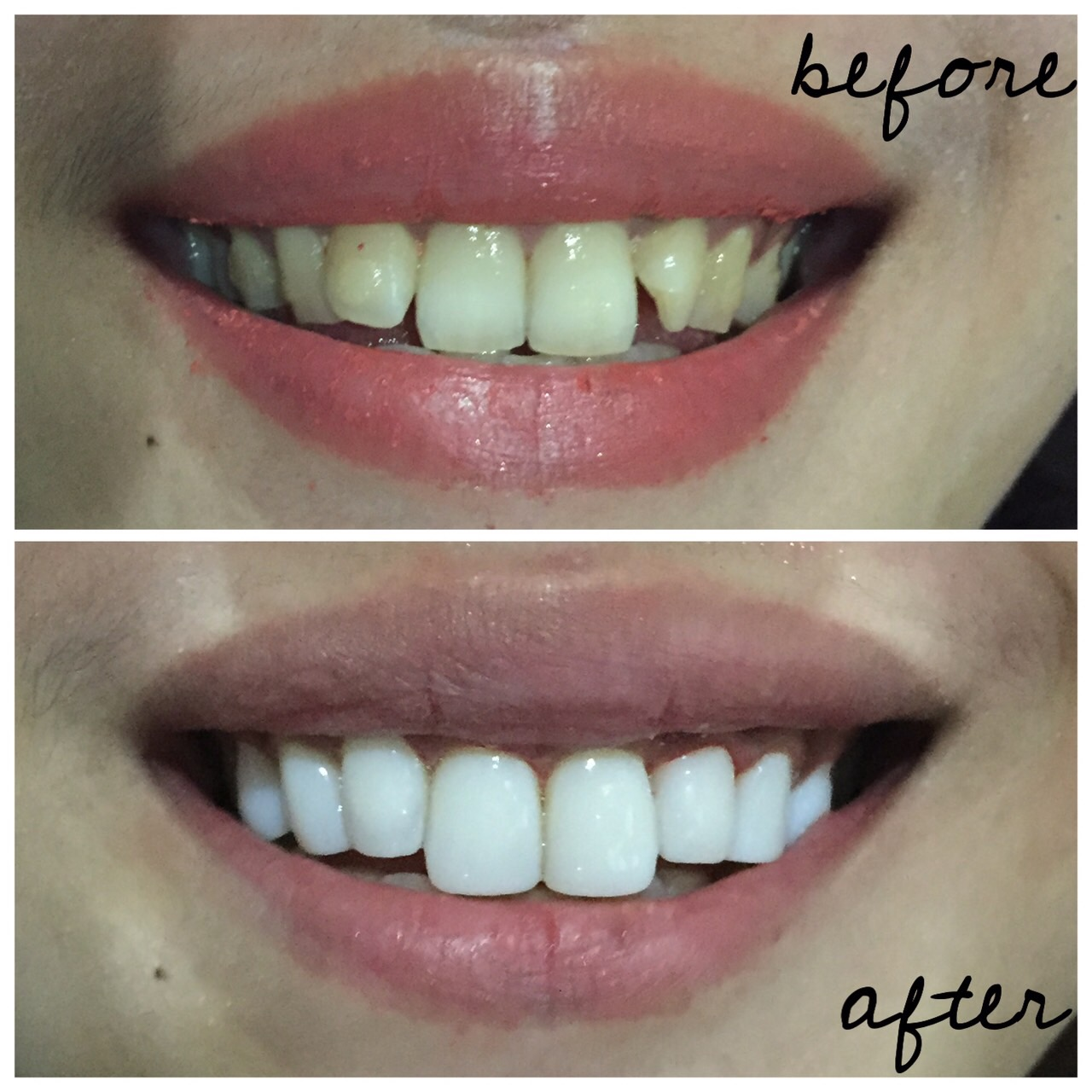 apa itu veneer gigi ancora store u2022 rh ancora store apa itu veneer gigi dan berapa biayanya apa itu veneer gigi kelinci