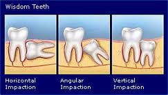 wisdom2 teeth