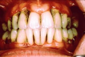 halitosis 2